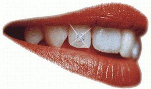 歯のジュエリー